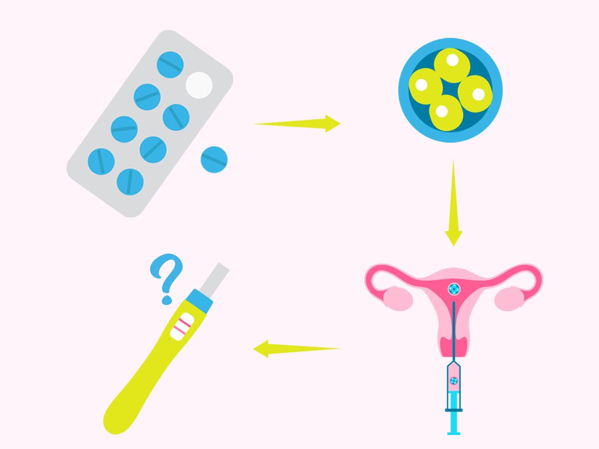 FIV con óvulos de donante: paso a paso